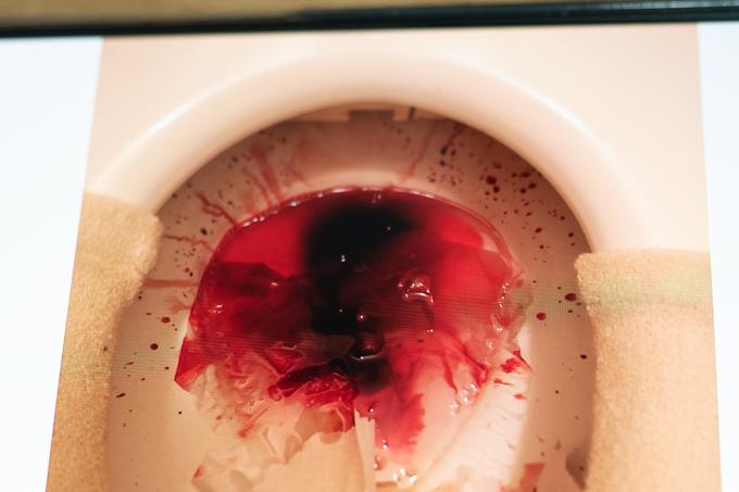 痛みがないのに出る血便の状態